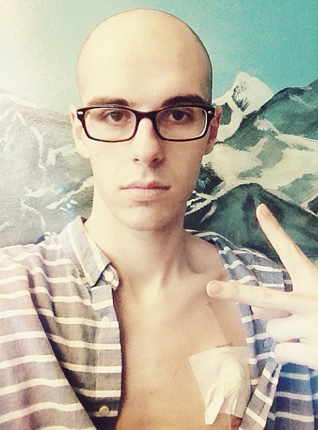 His hair loss as a result of chemo.