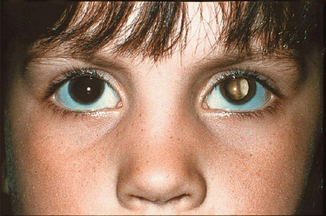 If you see a photo of a child with a reflection or red-eye in ONLY one eye, it could be a sign of retinoblastoma (a type of eye cancer).