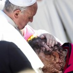 Pope_Francis_blesses_man_neurofibromatosis papersnack.com