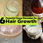 6-Top-Remedies-for-Hair-Growth
